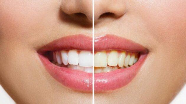 Dişlerde sararmalara karşı günlük bakım önerileri…